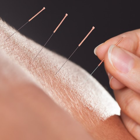 five-element acupuncture