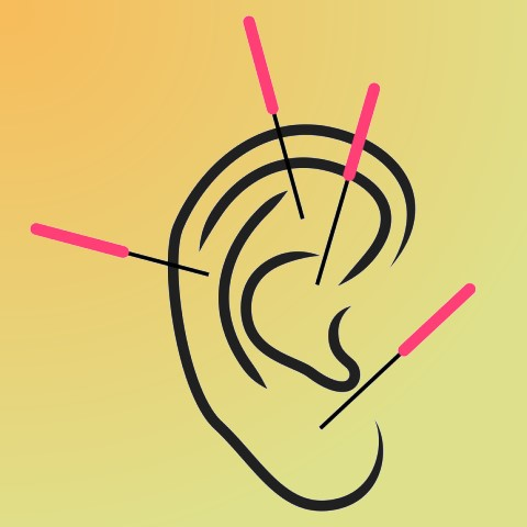ear acupuncture - five needle protocol - 5np